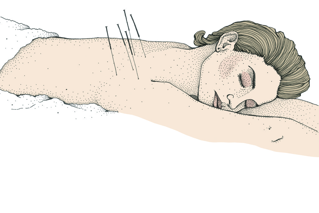 What's the deal with acupuncture?